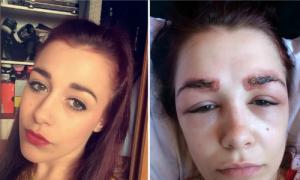 Vũ công 19 tuổi gặp họa sau phun xăm lông mày