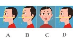 Nhìn hình dáng chiếc cằm của bạn để biết sức khỏe tốt hay xấu