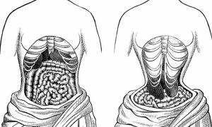 Đai nịt bụng có làm giảm mỡ bụng?