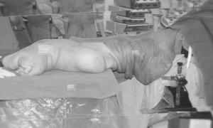 Khối u nặng 40 kg ở chân