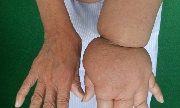 Phù tay voi - nỗi đau sau điều trị ung thư vú