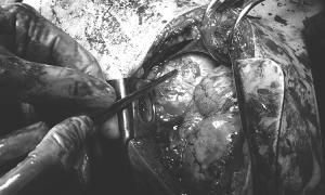 Cứu bệnh nhân bị thương thấu tim