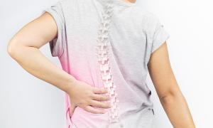 Làm sao để xác định loãng xương?