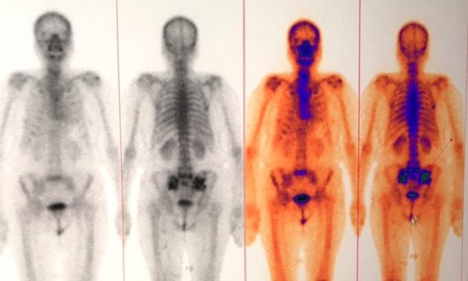 Mũi tiêm phát hiện sớm ung thư di căn xương