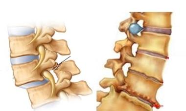 Biến chứng của bệnh lý cột sống do viêm