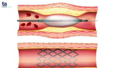 Can thiệp bệnh lý tim mạch bằng kỹ thuật thông tim
