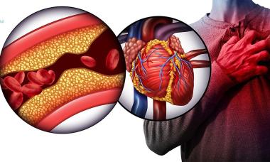 Khi nào cần can thiệp động mạch vành?